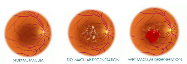 Macular degeneration caused by cataract surgery clinic